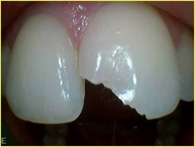 Dentists at Pymble Customer Case Study Broken Teeth Before Dental Treatment