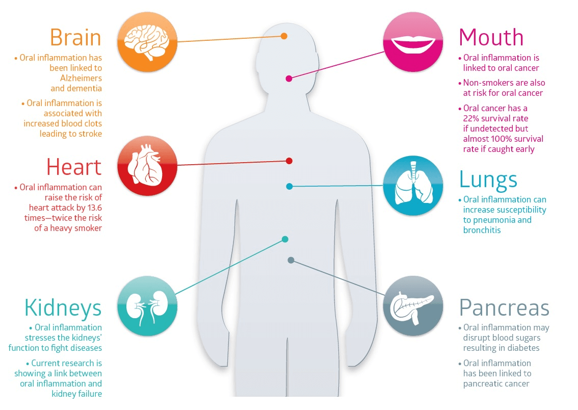 Dentists at Pymble Oral Health and General Health Infographic Image Health Link
